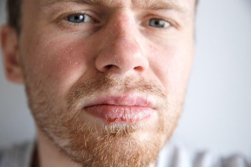 Przyczyny powstawania opryszczki na ustach